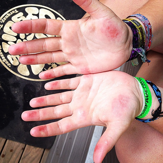 It literally only hurt when I touched the surf board... It really sucked.